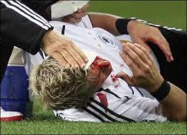 to a nasty head injury