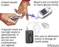 Glucose test: MedlinePlus